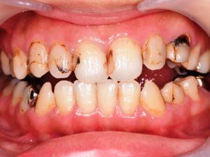 初診時口腔内 虫歯 着色 コンポジット修復 保険診療 前歯 詰め物