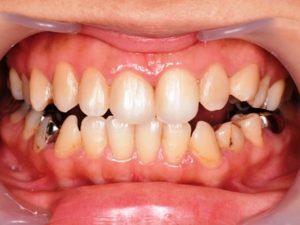 治療後口腔内写真 虫歯 着色 コンポジット修復 保険診療 前歯 詰め物